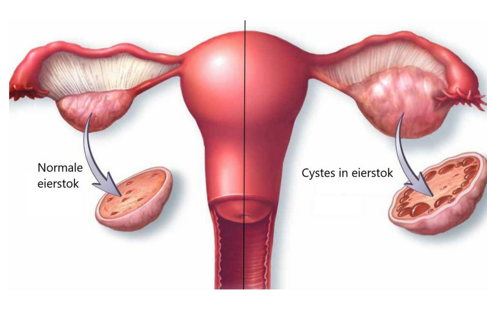 Wat is PCOS? (Polycysteus Ovarium Syndroom)